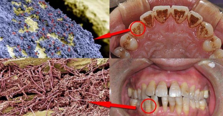 口腔牙齿图片结构图